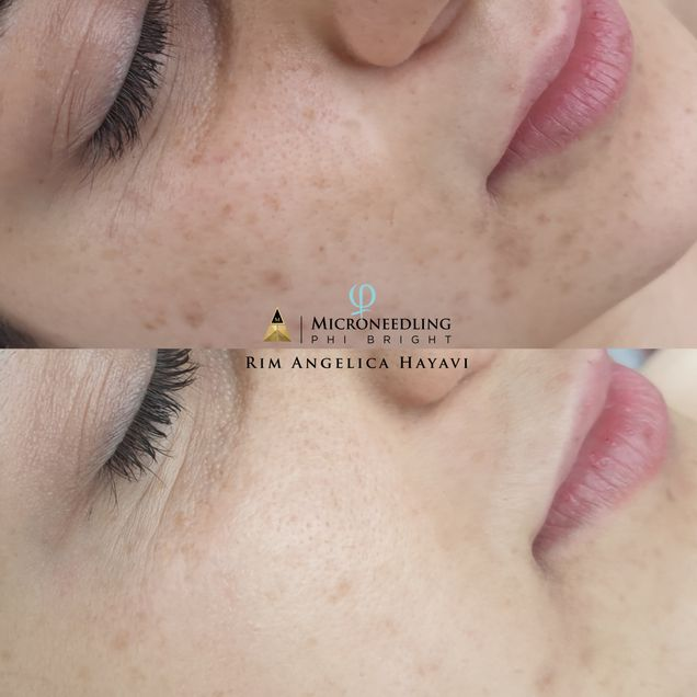 Microblading - Phi brows by Rim - Biel